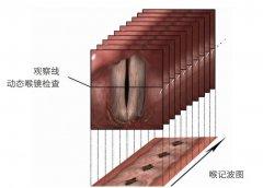喉记波扫描VSK